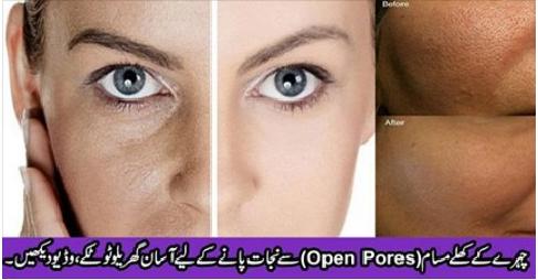 Open-Pores