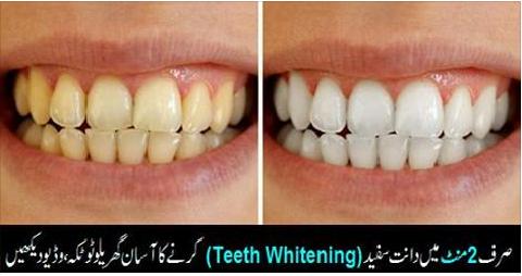 teeth-white