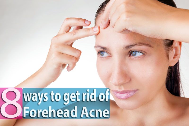 8-Ways-to-Get-Rid-of-Forehead-Acne-Overnight
