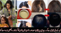 hair fall instantly