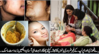 remove hairss-