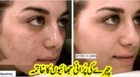 face freckles