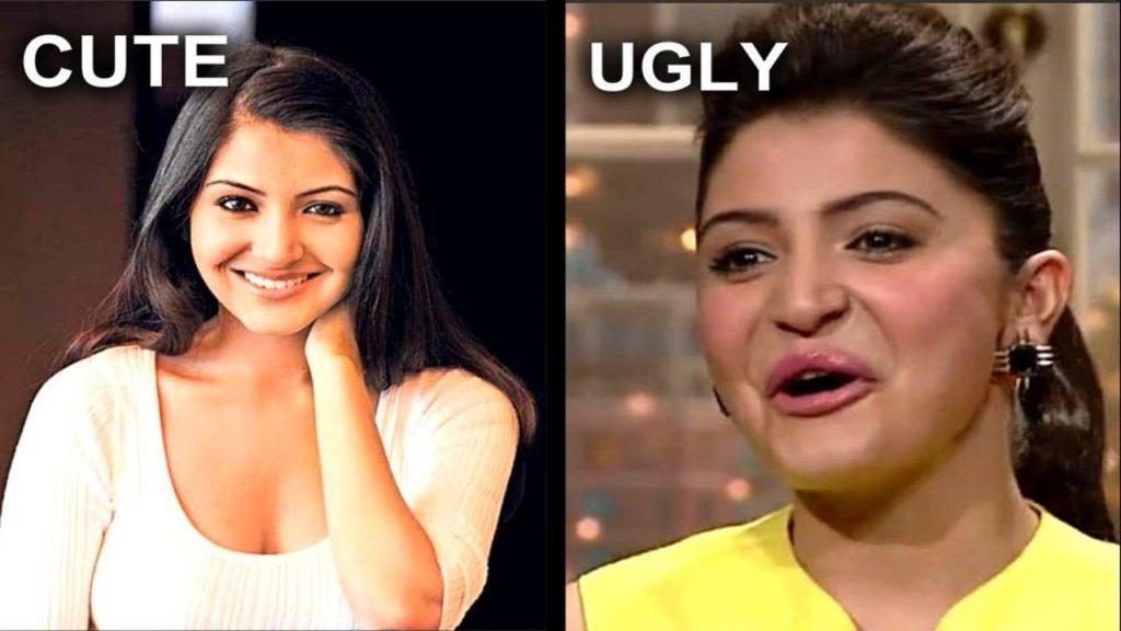 Anushka-Sharma-plastic-surgery